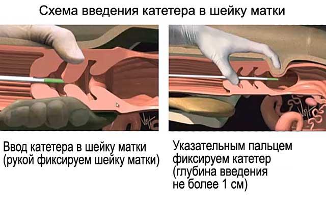 Схема введения катетера в шейку матки