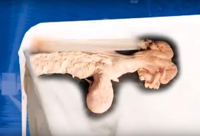 Так органы выглядят внешне