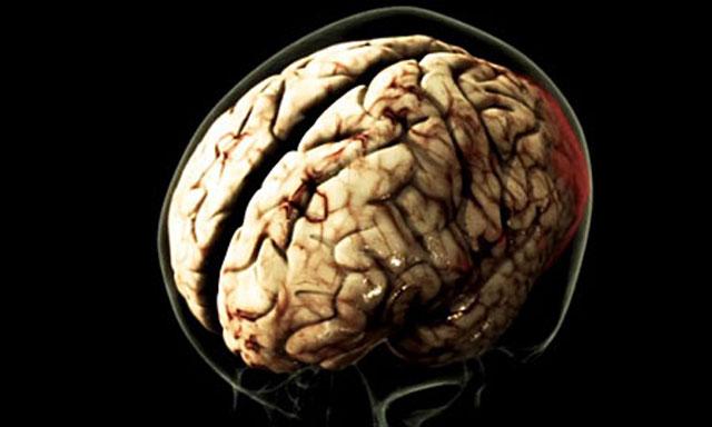 Могут поразить мозг