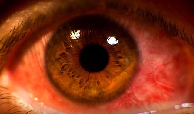 Могут поразить хрусталик глаза