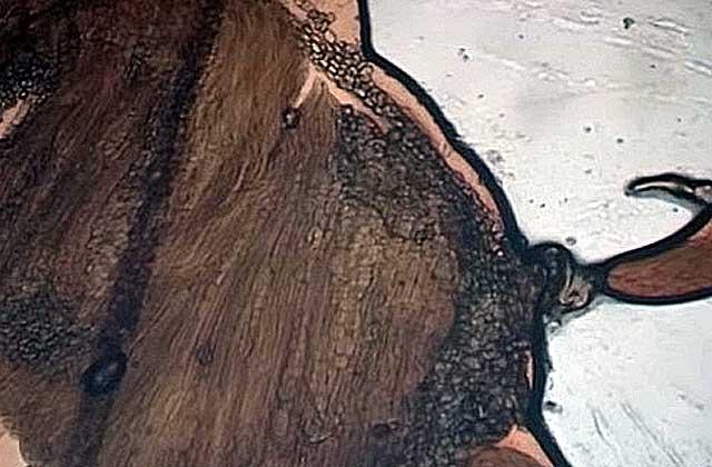 Личинки трихинелл под микроскопом